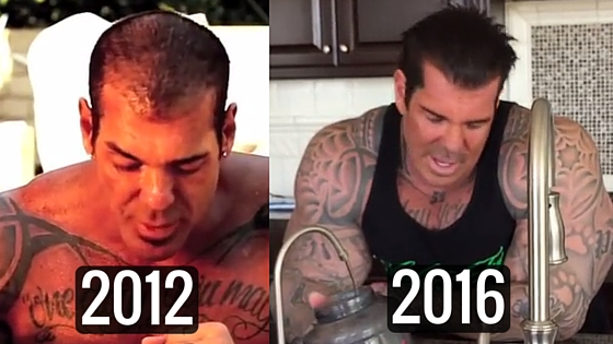 Rich Piana hair transplant before and after