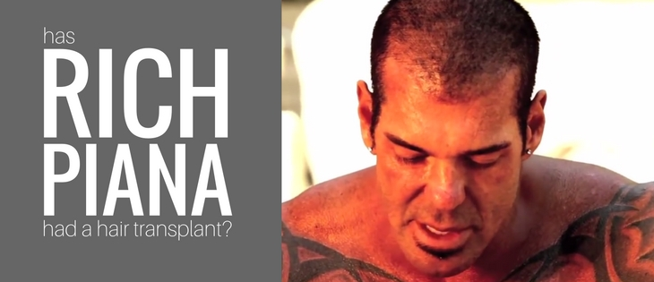 Rich Piana hair transplant