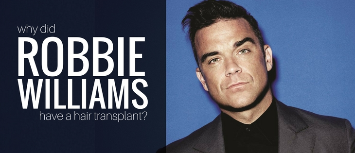 Robbie Williams Hair Transplant