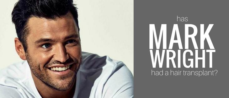 has Mark Wright had a hair transplant?
