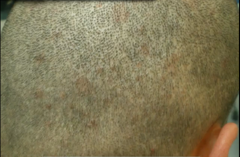 Getting a hair transplant in Turkey - FUE scarring - virtually undetectable