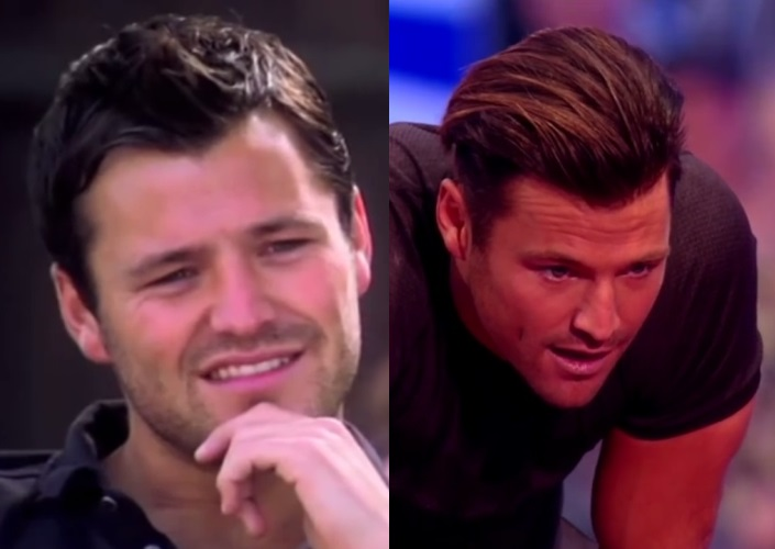 Mark Wright before and after hair transplant