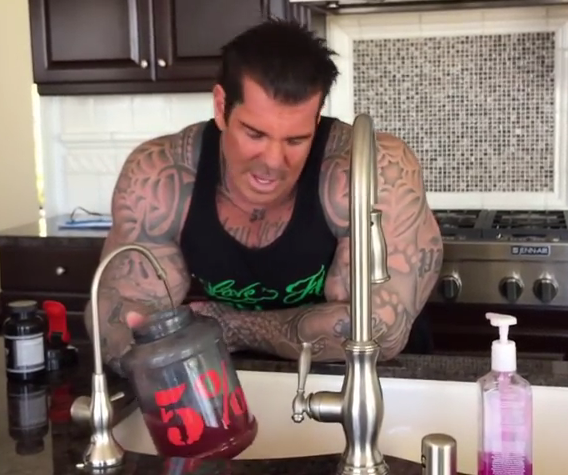 has rich piana had a hair transplant? after