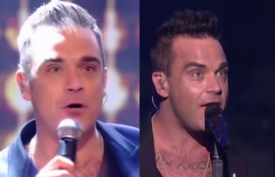 Robbie Williams before and after Hair Transplant