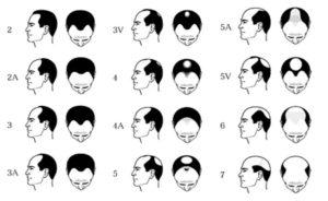 skala norwooda dla łysienia androgenetycznego