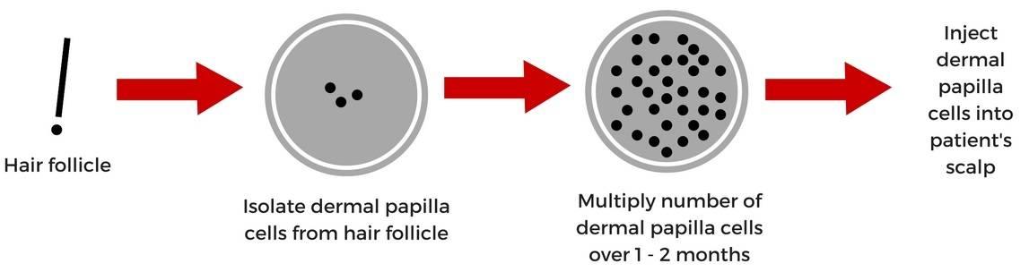 Hair Cloning Dermal Papilla Multiplication