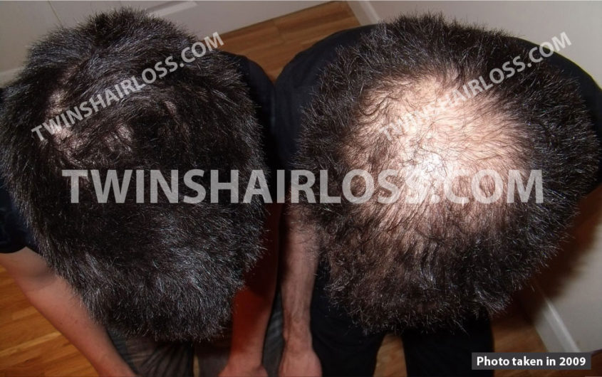 dutasteride hair loss treatment - twins