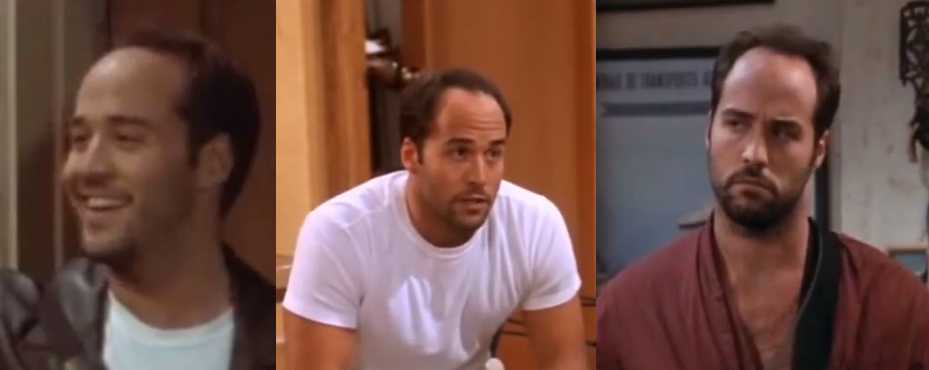 Jeremy Piven hair loss before hair transplant