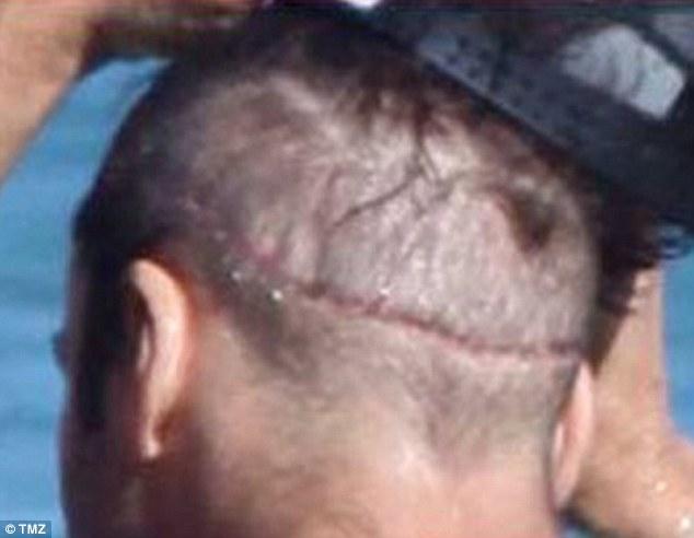 Jeremy Piven hair transplant scar