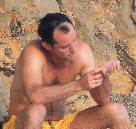 Jude Law hair loss 2011