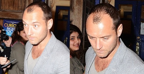 Jude law receding hairline and thinning