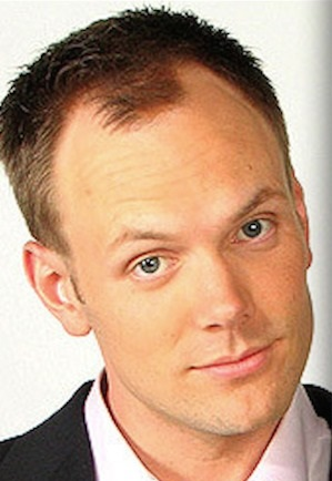 Joel McHale receding hairline before hair transplant