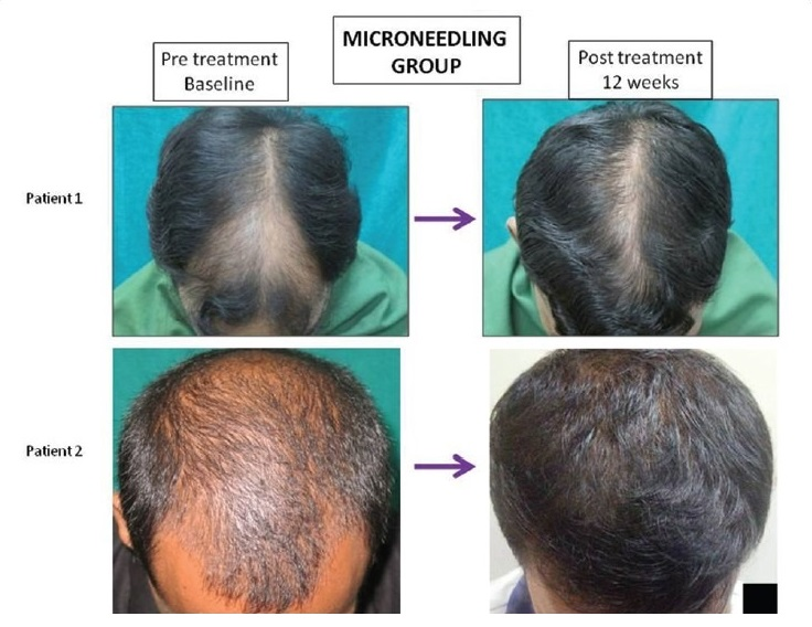 Hair regrowth examples from derma rolling and minoxidil group