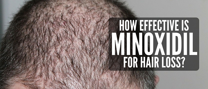 How effective is minoxidil for hair loss