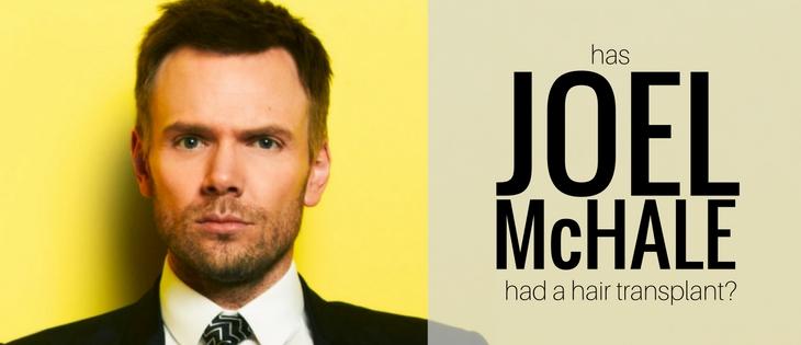 Joel McHale hair transplant