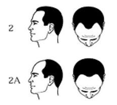 Norwood 2 hair loss