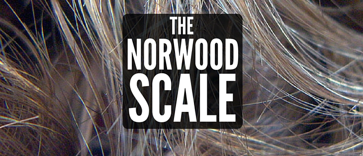The Norwood Scale for Male Pattern Hair Loss