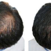 Pumpkin seed oil for hair loss trial participant 1