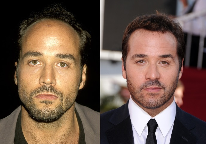 Jeremy Piven before and after hair transplant comparison