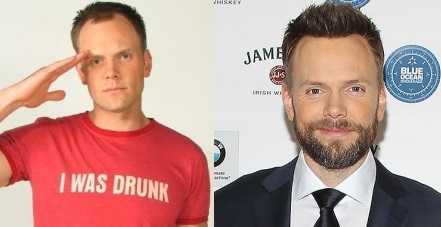 Joel McHale before and after hair transplant