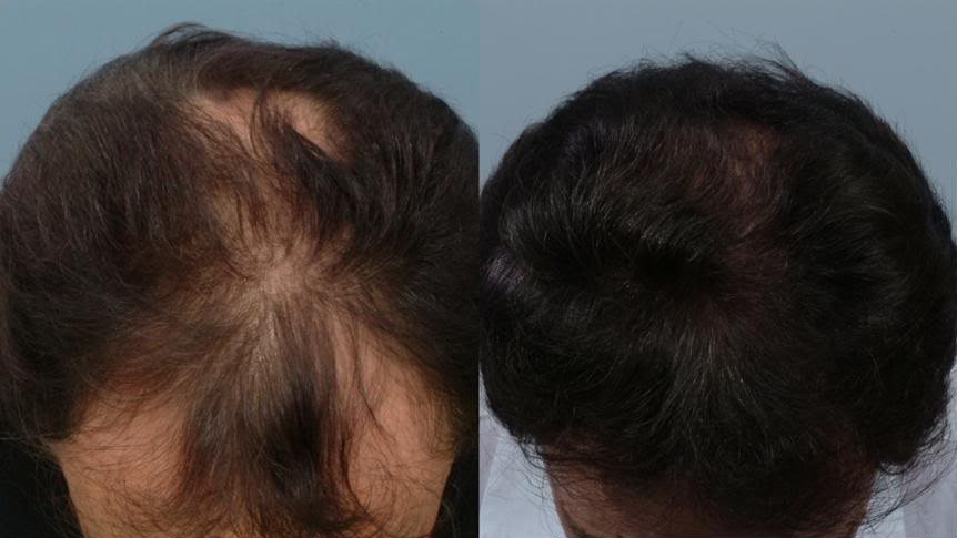 Minoxidil and finasteride combination