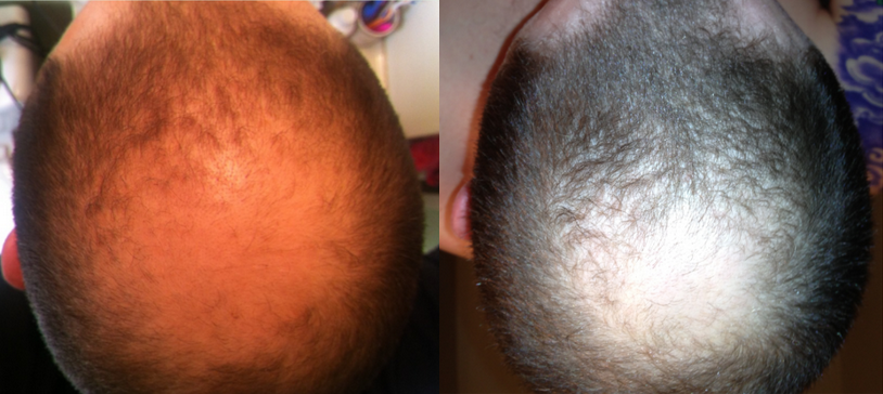 scalp massage hair loss results
