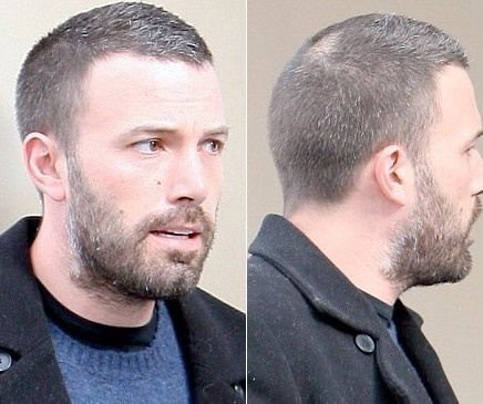 Ben Affleck bald spot and hair loss