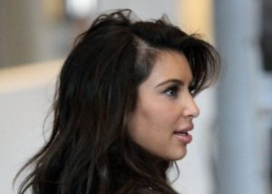 Kim Kardashian hair loss?