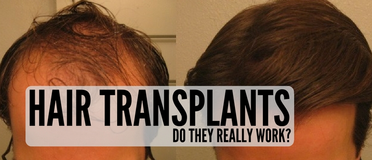 Do hair transplants work?