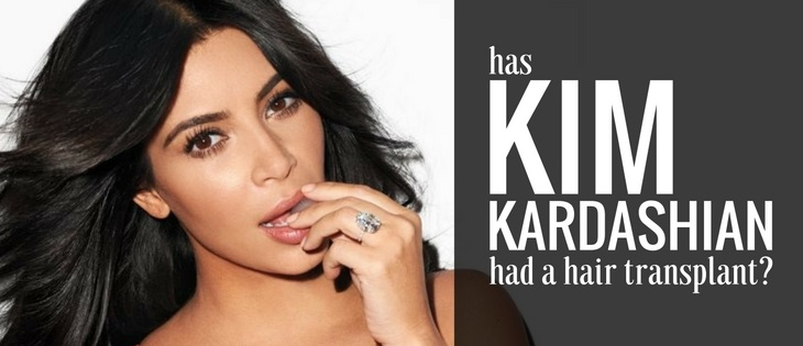 has kim kardashian had a hair transplant?