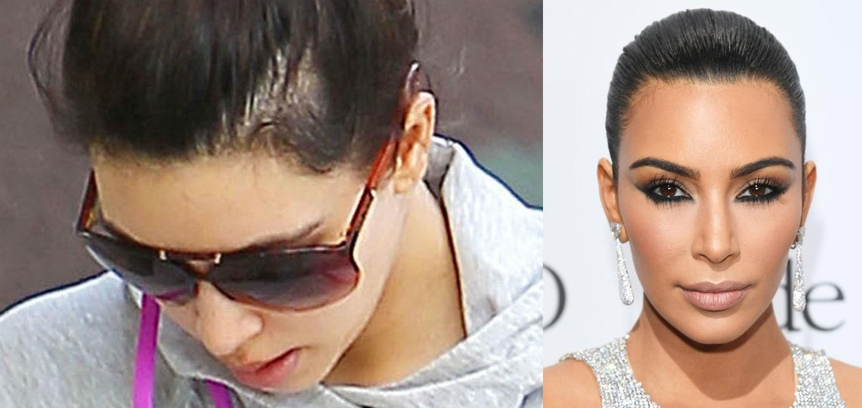 Kim Kardashian hair transplant rumor