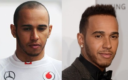 Lewis Hamilton before and after hair transplant