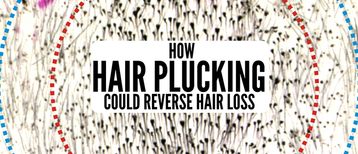 Quorum sensing hair loss: how plucking can reverse hair loss