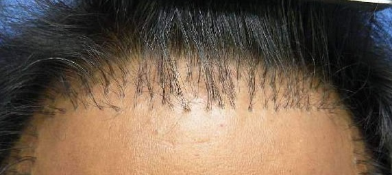 Pluggy result hair transplant