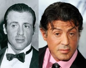 Sylvester Stallone hair transplant before and after