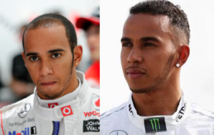 Lewis Hamilton hair transplant (before and after)