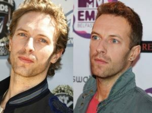 Chris Martin hair transplant before and after