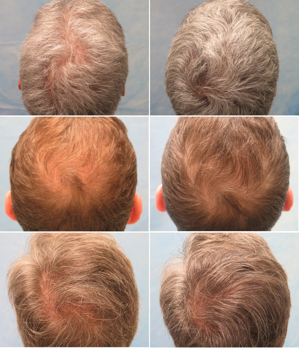 PRP for hair loss results: Bernstein medical