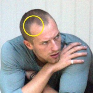 Chris Martin before hair transplant