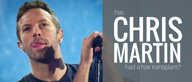Chris Martin Coldplay hair transplant
