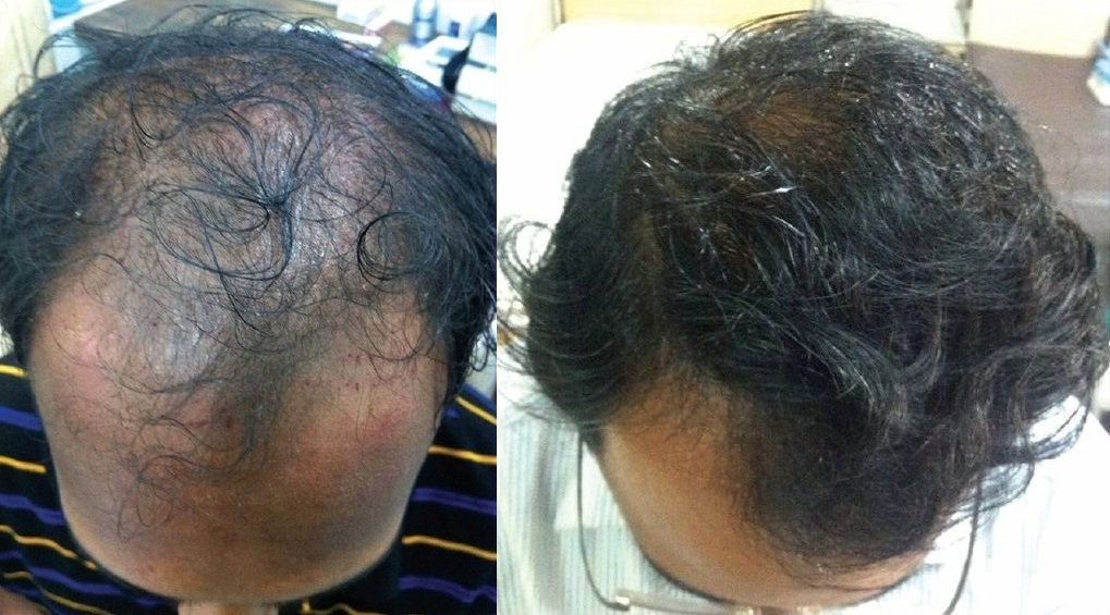 PRP for hair loss: before and after photo
