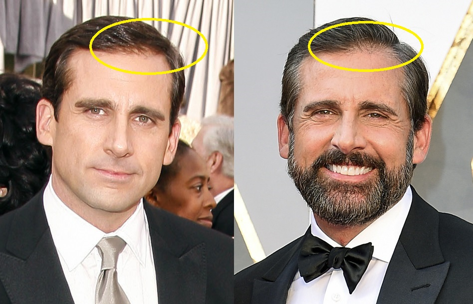Steve Carell hair before and after