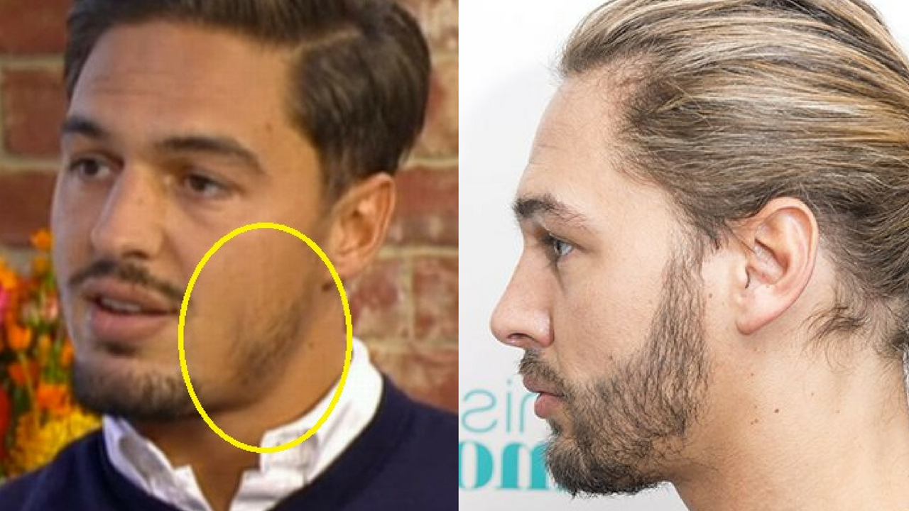 Mario Falcone beard transplant before and after
