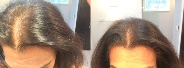 PRP for hair loss in women: result picture 1