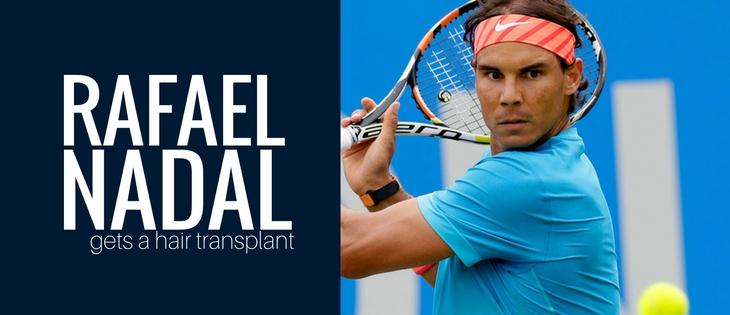 Rafael Nadal hair transplant