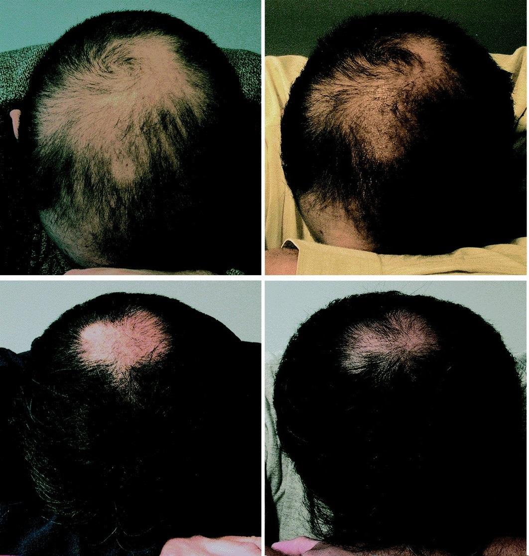 Botox hair loss study