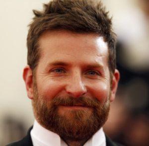 Bradley Cooper Hair Transplant (after)