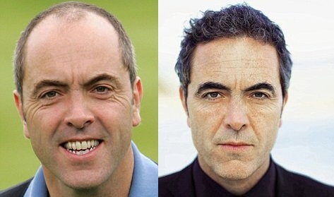 James Nesbitt hair transplant: before and after