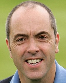 James Nesbitt before hair transplant