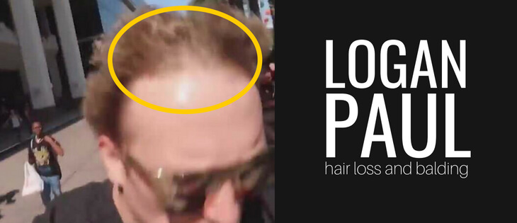 Logan Paul hair loss